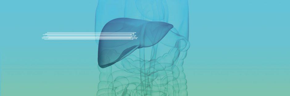 Künstliche Intelligenz in der Medizin / artificial intelligence diagnosis